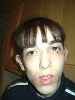 Josh bad eyes 2 001