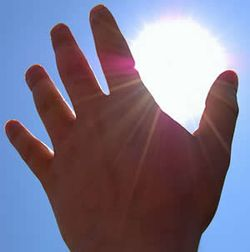 Sun burn hand