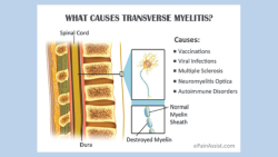 Transverse-myelitis